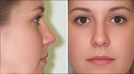 op dr volkan kahya ear nose throat diseases head and neck