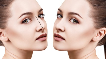 FEMALE COSMETIC NOSE SURGERY